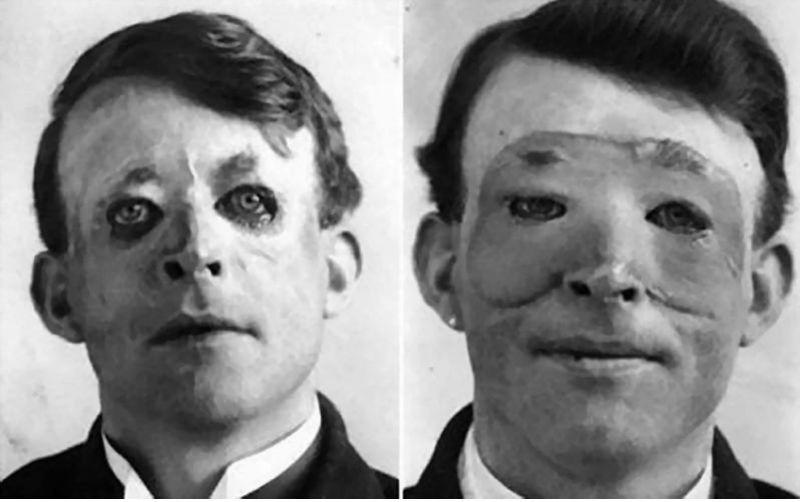 первая пересадка лоскута на лицо