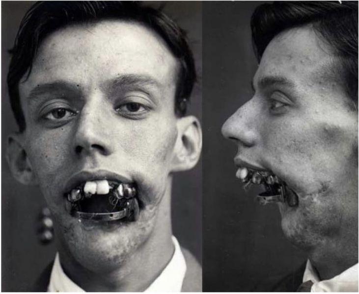 первая реконструкция носа