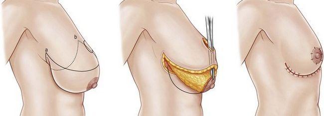 Большая грудь вызывает боль в спине? Операция по уменьшению груди приносит облегчение | SLOSSER
