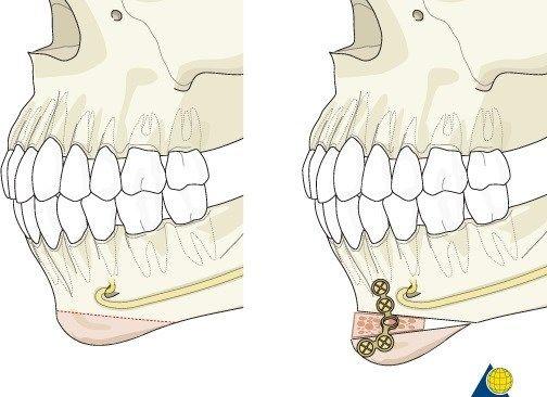 Варианты пластической хирургии для пациентов с небольшим или утопленным подбородком | SLOSSER