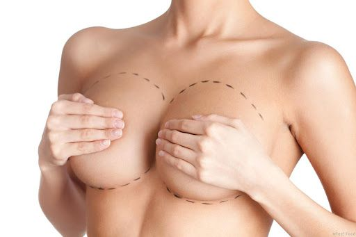 Косметические процедуры для сосков и ареол | SLOSSER