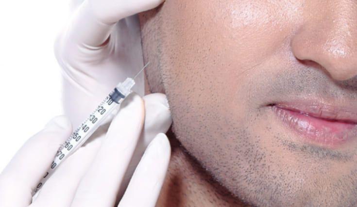 Чего могут ожидать мужчины во время восстановления своих дермальных филлеров? | SLOSSER