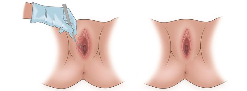 В чем разница между обрезной лабиопластикой и клиновидной лабиопластикой?   SLOSSER