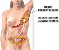 кожно-мышечный лоскут с нижнебоковой части спины (Rubens flap)