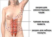 кожно-мышечный лоскут с передней брюшной стенки