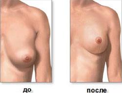после уменьшения груди