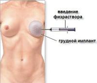 реконструкция груди с экспандером