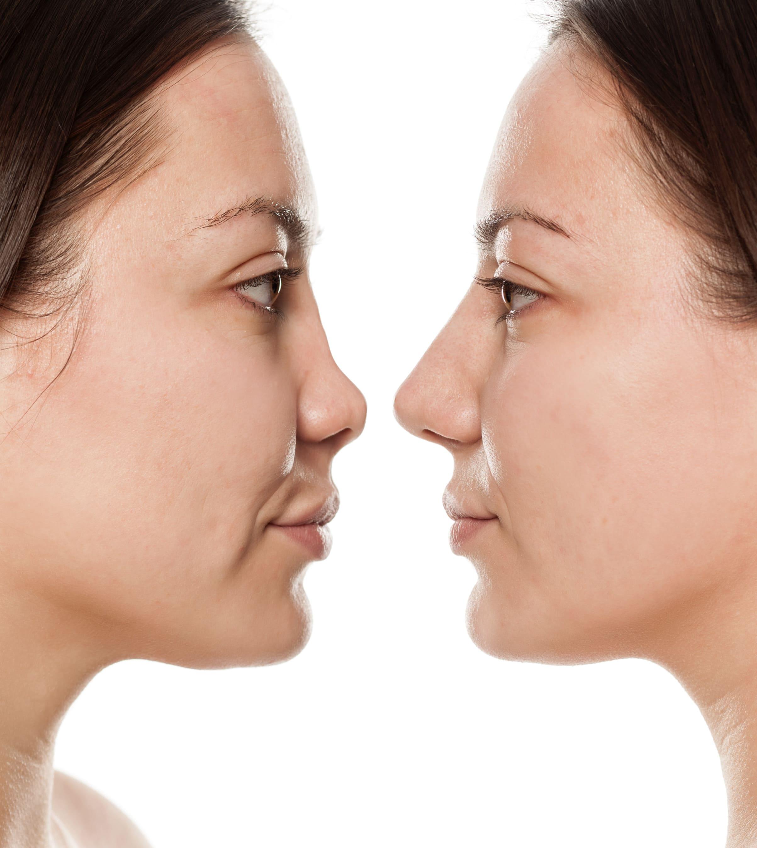 повторная ринопластика носа