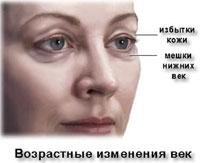 Блефаропластика варіанти операції