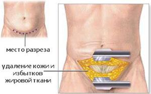 техника операции миниабдоминопластики