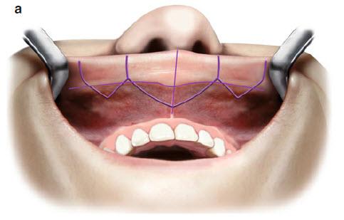 Збільшення губ хірургічним методом- розмітка