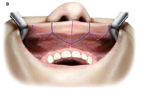 Увеличение губ хирургическим методом- разметка