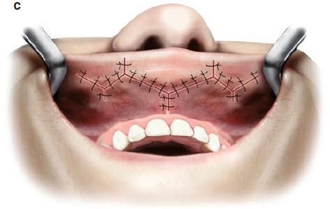 Збільшення губ методом V-Y -вшиття слизової