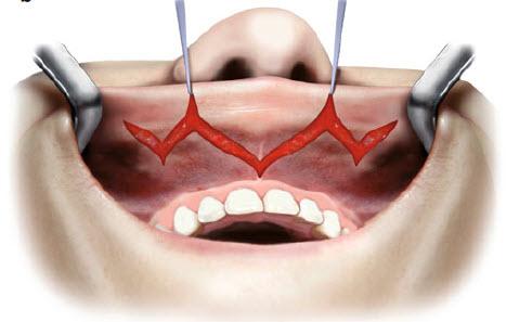 Збільшення губ методом V-Y -сепарування слизової