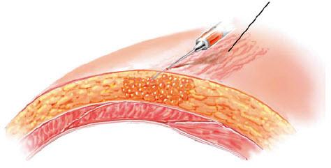 Забір жирової тканини для ліпофілінгу