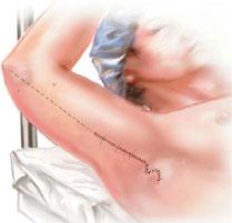 Брахіопластика підтяжка рук