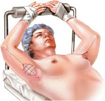 операція брахіопластики