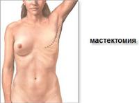 Мастектомія