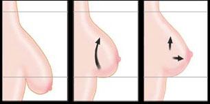 Ступінь опущення грудей для планування мастопексії