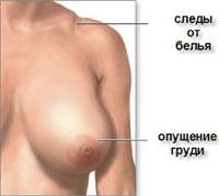 Скарги при великих грудях