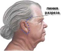 Підтяжка шиї
