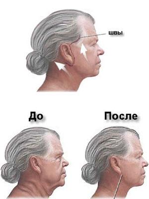 техніка підтяжки шиї